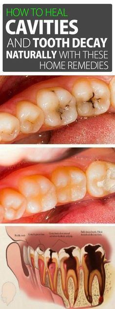 ew How to Heal Cavities and Tooth Decay Naturally with These Home Remedies