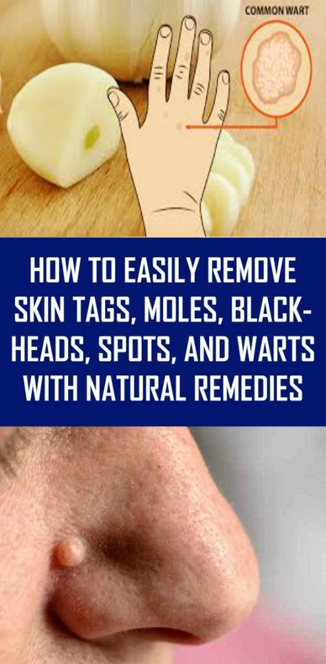 13 2 How to Easily Remove Skin Tags, Moles, Blackheads, Spots, and Warts with Natural Remedies