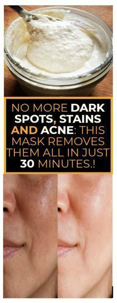 13 3 NO MORE DARK SPOTS, STAINS AND ACNE THIS CHINESE MASK REMOVES THEM ALL IN JUST 30 MINUTES.!