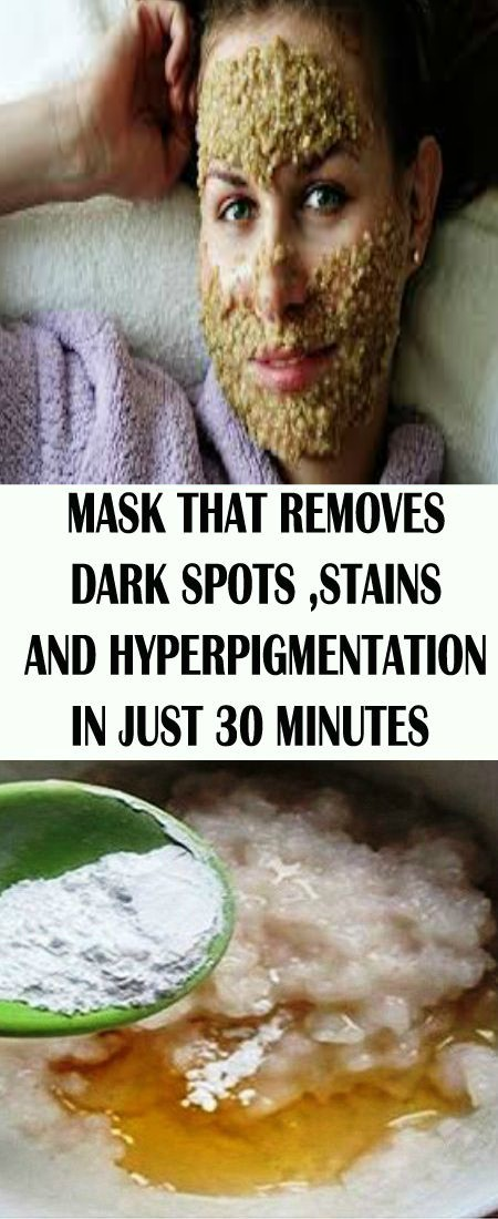 Mask That Removes Dark Spots,stains & Hyperpigmentation In Just 30 Minutes