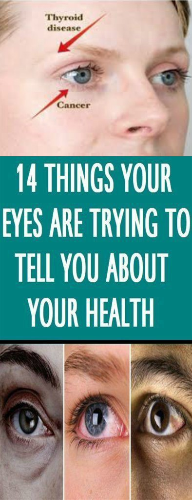 18 14 Things Your Eyes Can Tell You about Your Health (If you know what to look for)