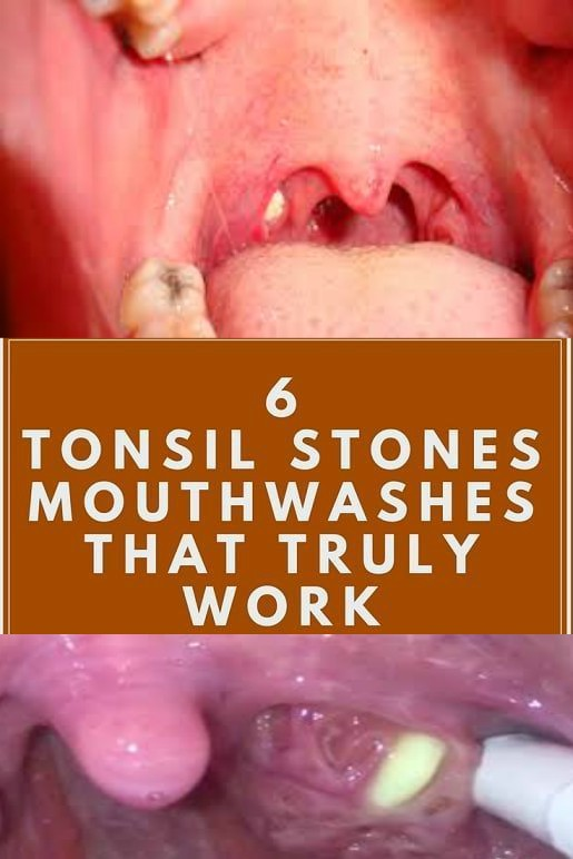 12 7 how to get rid of tonsil stones