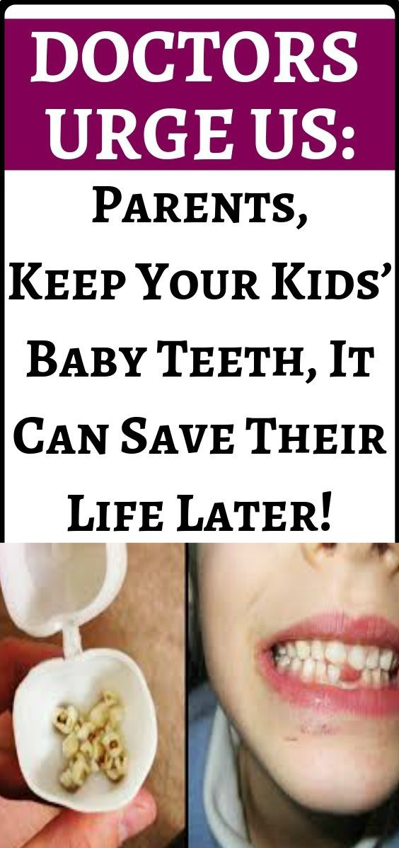 13 1 Doctors Urge Parents: Keep Your Kids' Baby Teeth