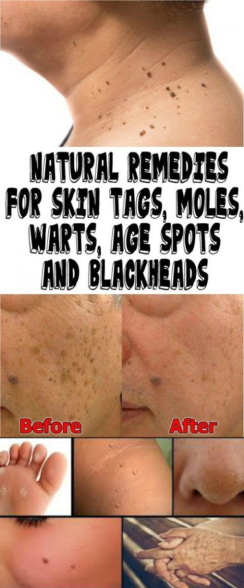 13 3 NATURAL REMEDIES FOR SKIN TAGS, MOLES, WARTS, AGE SPOTS AND BLACKHEADS