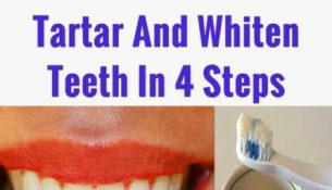 A Friend Dentist Taught Me How To Remove Tartar And Whiten Teeth In 4 Steps