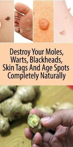 16 1 DESTROY YOUR MOLES, WARTS, BLACKHEADS, SKIN TAGS AND AGE SPOTS COMPLETELY NATURALLY