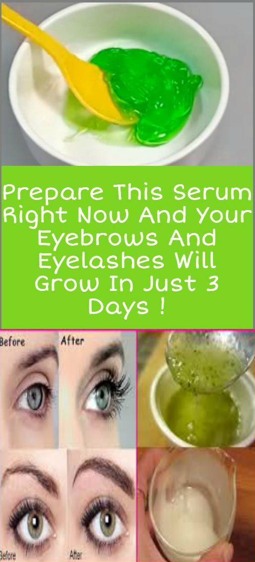 16 2 Prepare This Serum Right Now And Your Eyebrows And Eyelashes Will Grow In 3 Days