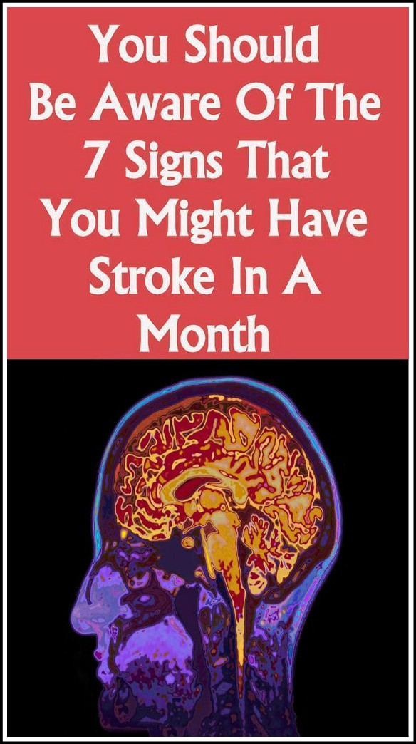 13 10 You should be aware of the 7 signs that you might have stroke in a month
