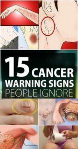 13 8 157x300 15 Cancer Symptoms Women Often Ignore
