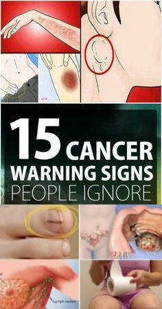 13 8 15 Cancer Symptoms Women Often Ignore