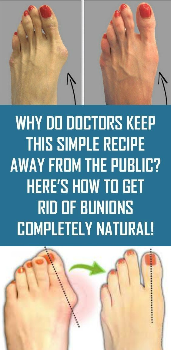 14 12 Why Do Doctors Keep This Simple Recipe Away From The Public? Here's How To Get Rid Of Bunions Completely Natural!