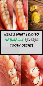 12 4 150x300 WOW! 6 amazing ways to heal tooth decay and reverse cavities naturally!