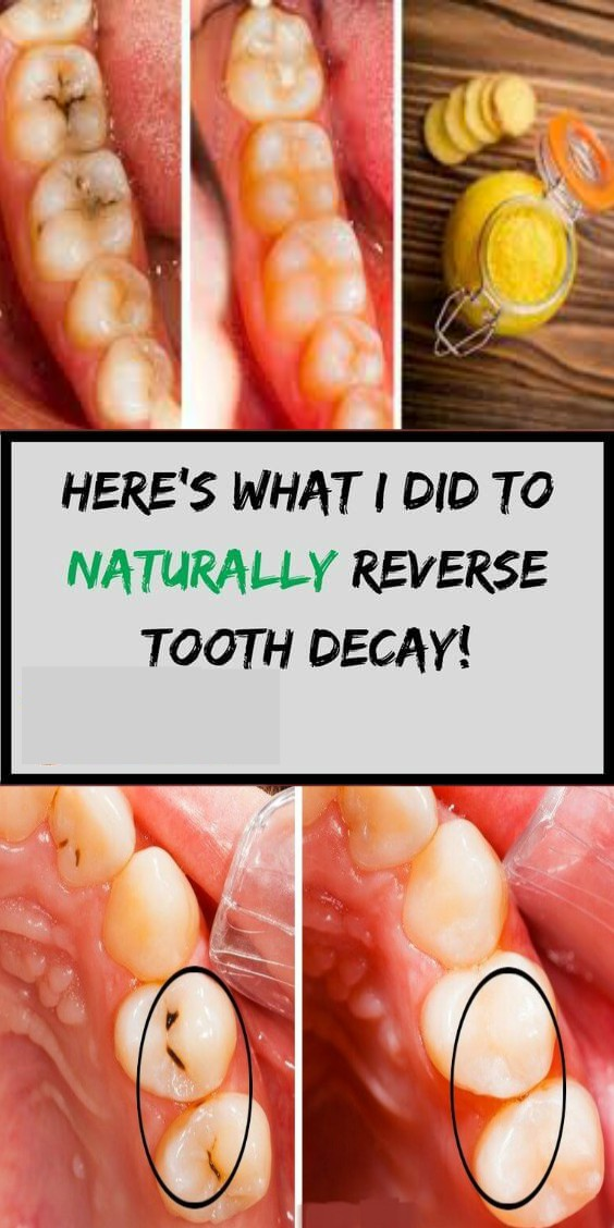 WOW! 6 amazing ways to heal tooth decay and reverse cavities naturally!