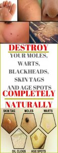 13 115x300 Destroy Your Moles, Warts, Blackheads, Skin Tags And Age Spots Completely Naturally