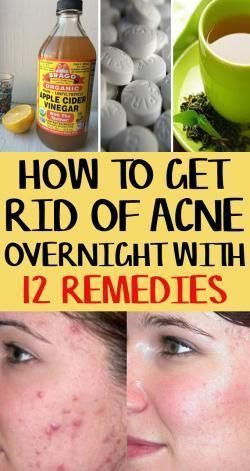 How to Get Rid of Acne Overnight: 12 Remedies That Work