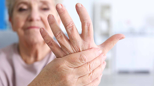 Effective Way for Treating Arthritis CBD Products Are A Unique and Effective Way for Treating Arthritis
