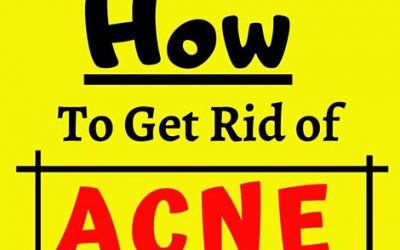 how to get rid of acen scars at home