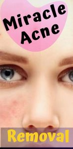 2 147x300 how to get rid of miracle acen scars at home