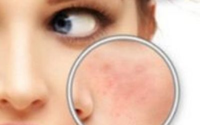 how to get rid of miracle acen scars at home ?