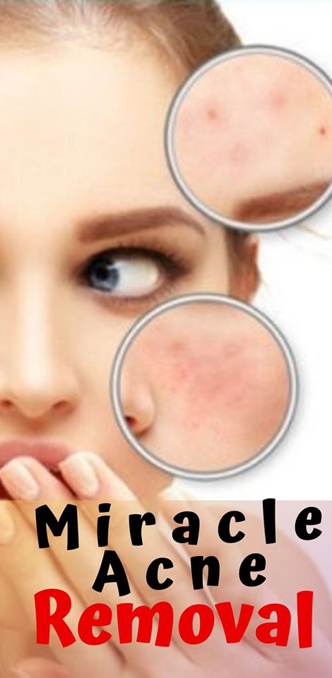 4 how to get rid of miracle acen scars at home ?