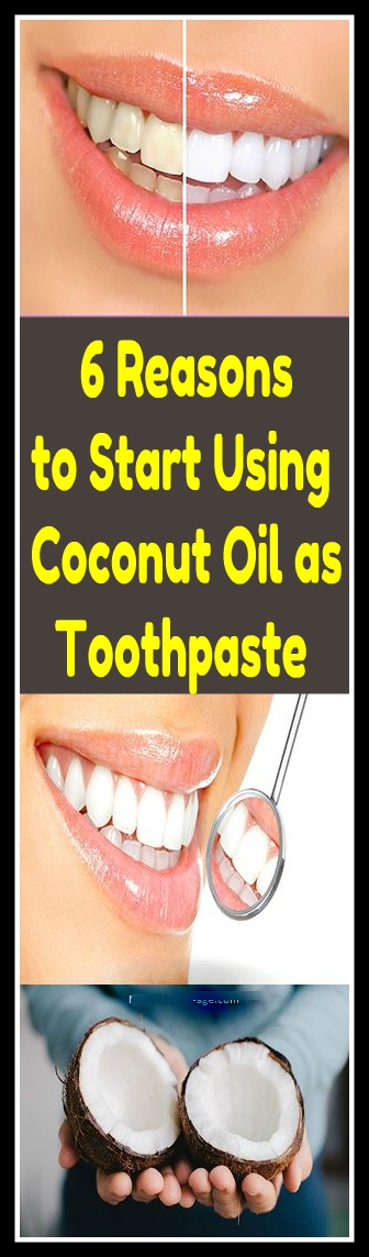 6 Reasons to Start Using Coconut Oil as Toothpaste 1 6 Reasons to Start Using Coconut Oil as Toothpaste