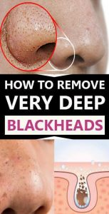 1 153x300 How To Get Rid Of Blackheads On Nose