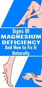 1 3 143x300 7 Signs and Symptoms of Magnesium Deficiency