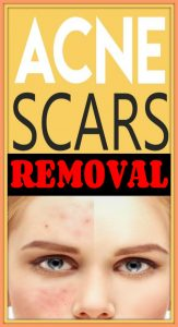 15 DIY Acne Scar Home Remedy Treatments 163x300 Acen Scars Removal