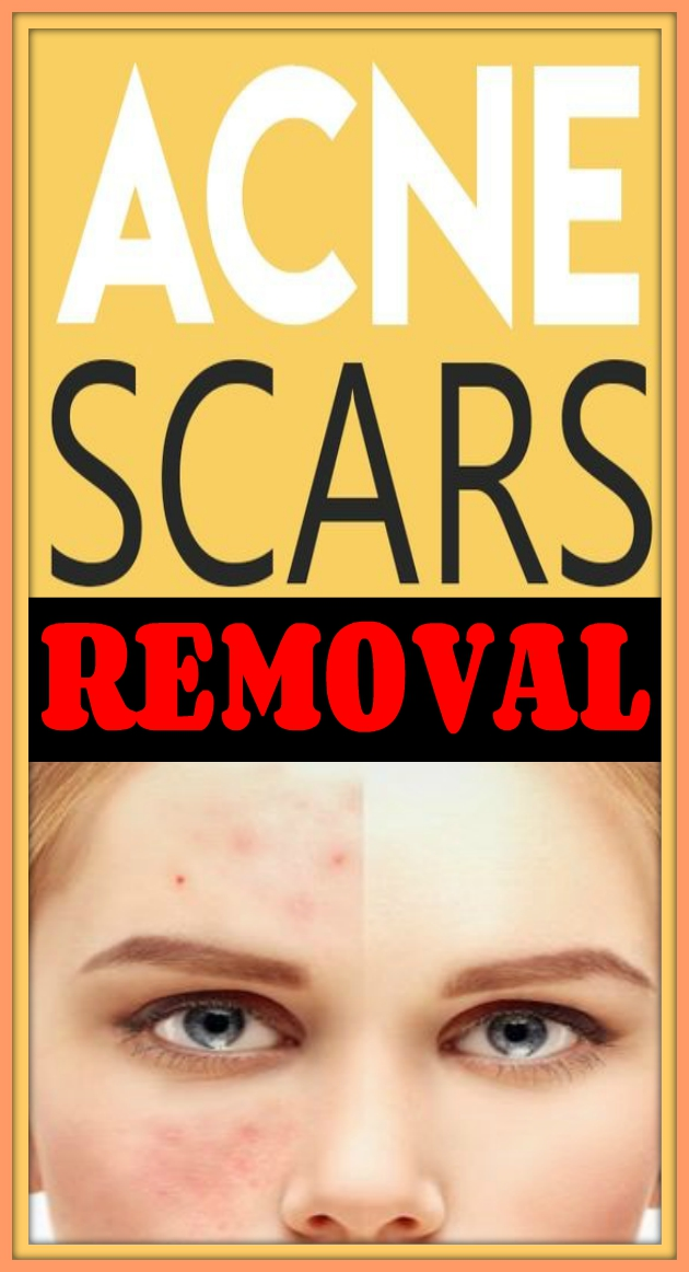 15 DIY Acne Scar Home Remedy Treatments Acen Scars Removal