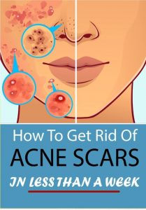 30d0f89b38c7bcdb2da06d2260680bd4 022 209x300 How to Get Rid of Cen Scars