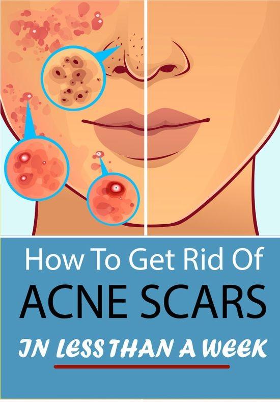 30d0f89b38c7bcdb2da06d2260680bd4 022 How to Get Rid of Cen Scars