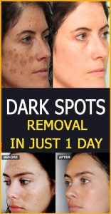 4 5 156x300 Dark spots removal in just 1 day
