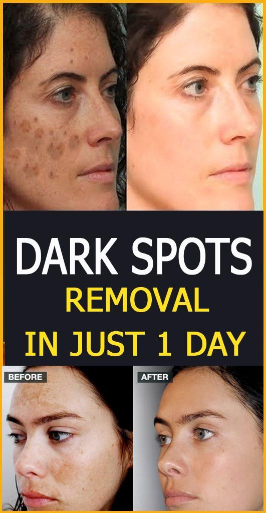 Dark spots removal in just 1 day