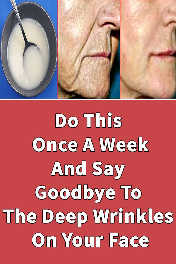 5 1 Do This Once A Week, And Say Goodbye To The Deep Wrinkles On Your Face